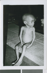 A Child Suffering from Malnutrition, Nigeria, ca.1967-1969
