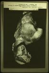 Alexander fragment by Everett Ferguson